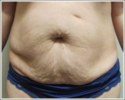 Tummy Tuck Before/After - Dr. Jason Helliwell